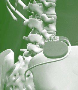 Neuroestimulador en tratamiento del dolor crónico