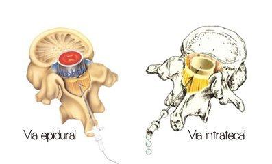 Vía intratecal y vía epidural