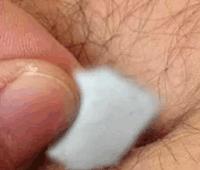 El algodón en el ombligo, remedio milagroso contra el dolor