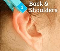 Pinza en la oreja reduccion dolor
